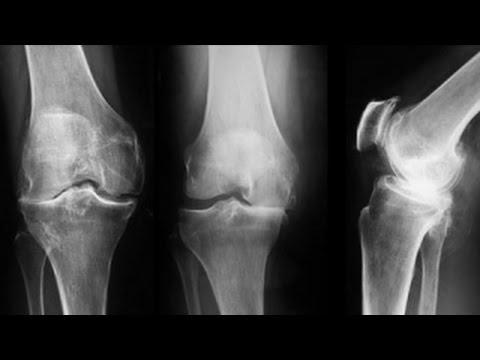 sindromul durerii de cot crispa și doare articulația umărului