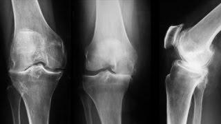 O noua solutie la indemana pentru artroza!(Te-ai saturat de injectii in articulatii sau de terapii scumpe dar fara efect in tratarea artrozei? Atunci urmareste acest episod despre cel mai nou tratament pentru ..., 2015-04-27T21:34:04.000Z)