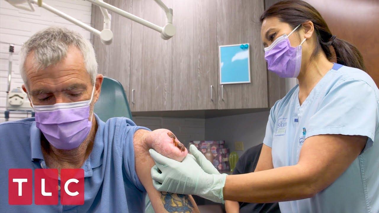 Leonard Has A Chip On His Shoulder Dr Pimple Popper