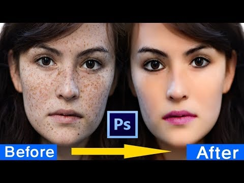 how to clean your face in photoshop cs3 | how to remove pimples in photoshop |