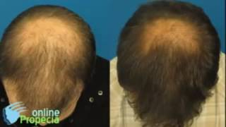 Propecia Before and After Results 2016