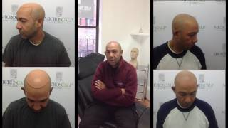 Testimony about micro pigmentation at Micro Scalp Clinic