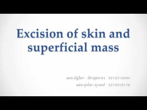 Excision skin and superficial mass