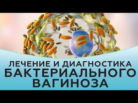 Бактериальный вагиноз. Лечение бактериального вагиноза