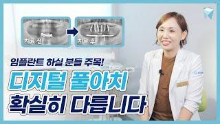 연령, 치아 개수 제한 없는 디지털 풀아치 임플란트의 …