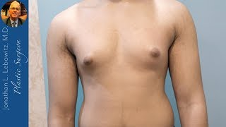 18 Y/O Gynecomastia Gland 🍳🍳 Removal Surgery, The Long Island Gynecomastia Center By Dr. Lebowitz