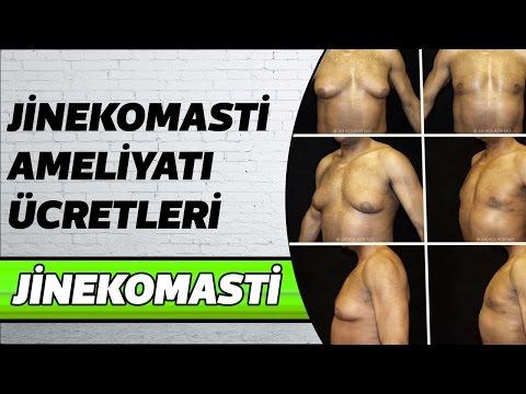 Jinekomasti Ameliyatı Ücretleri | Jinekomasti Ameliyatı Ne Zaman Yapılmalı ?