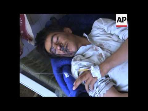 4:3 AP cover of injured from Afghan blast in Pakistan hospital