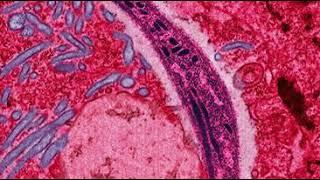 lehetséges a paraziták eltávolítása a testből