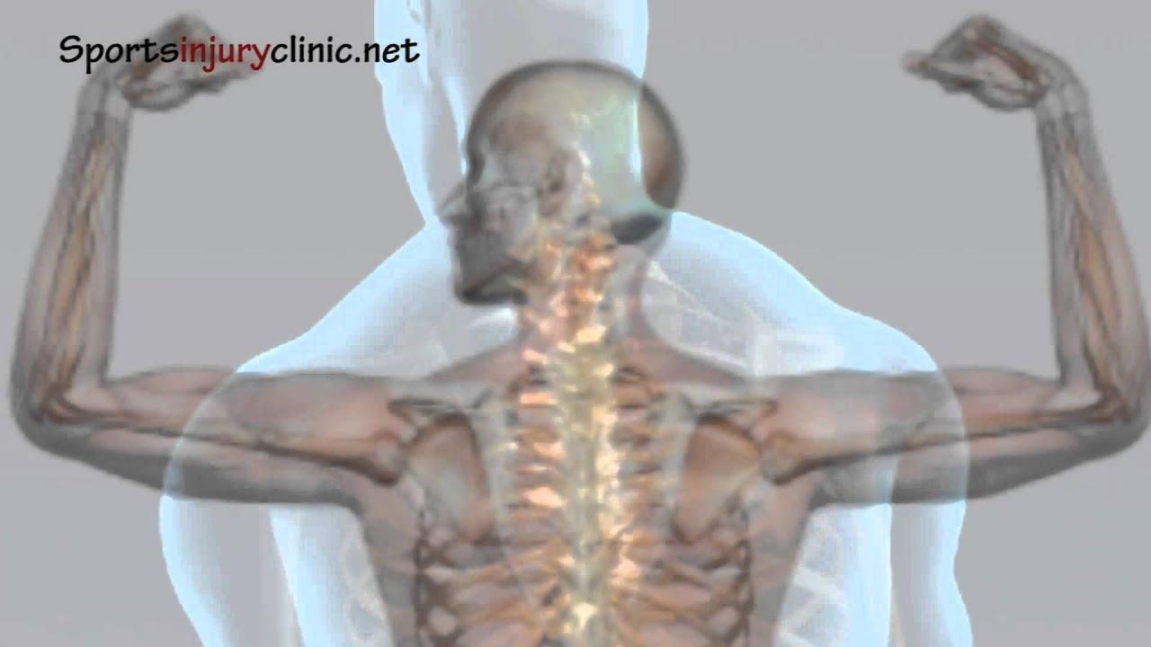 Shoulder Impingement Syndrome Shoulder Pain Explained In A