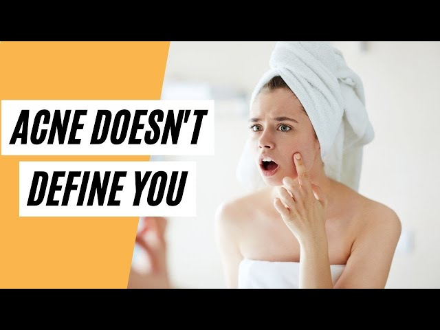Acne Doesn't Define You (How To Get Rid Of Acne)
