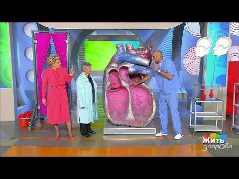 Жить здорово! Недостаточность аортального клапана. (19.01.2017)
