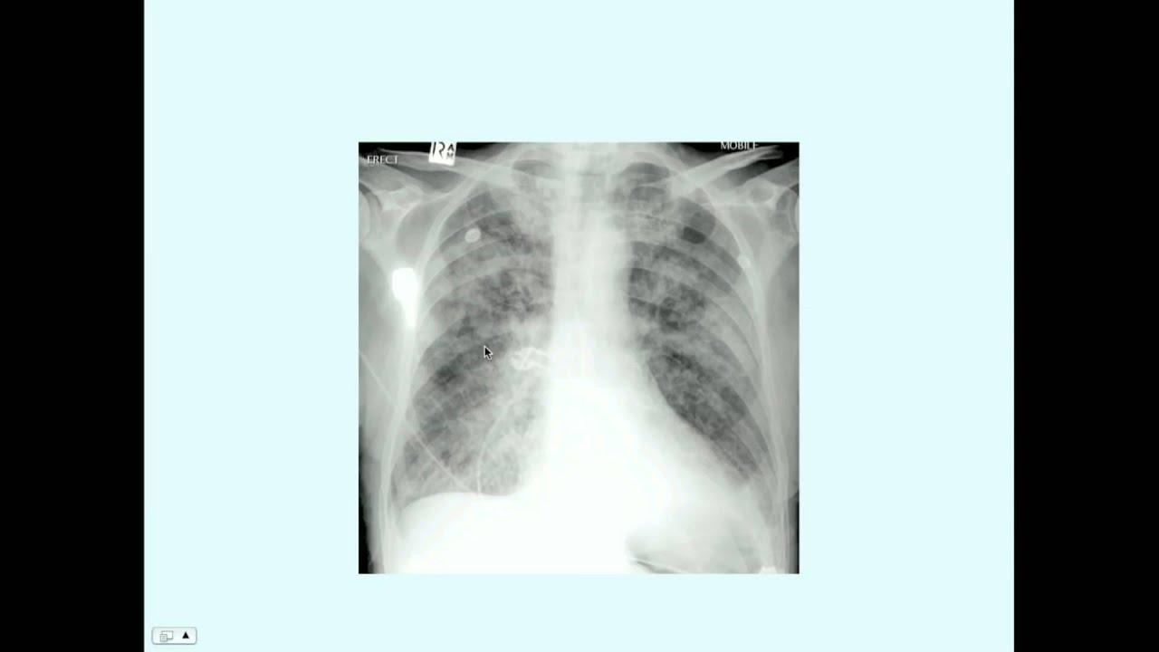 BRONCHIOLITIS-LUNGDISEASES - cover
