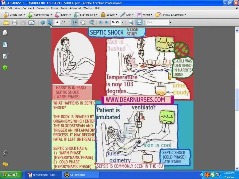 septic shock case study causes and effects Your gut flora may protect against sepsis a mouse study showed that having a particular mix of gut microbes raised blood levels of iga antibodies,  causes of septic shock (nd).