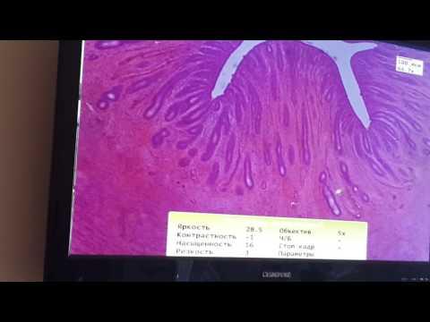 Гистология Яичник, Матка, Молочная железа Часть 1 (Женская Половая)