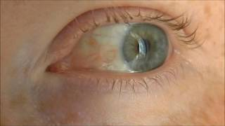 Episcleritis, a benign inflammatory eye condition, before and after treatment