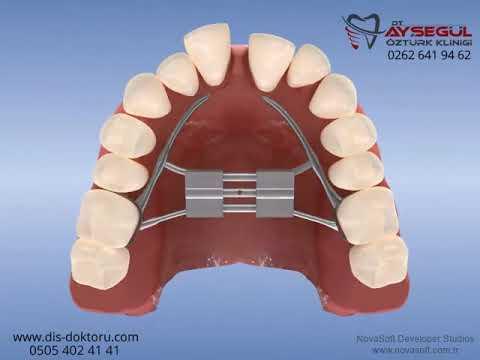 Ortodonti braket