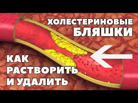 Как избавиться от атеросклеротических бляшек в сосудах шеи