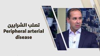 د. امير ملكاوي - تصلب الشرايين Peripheral arterial disease