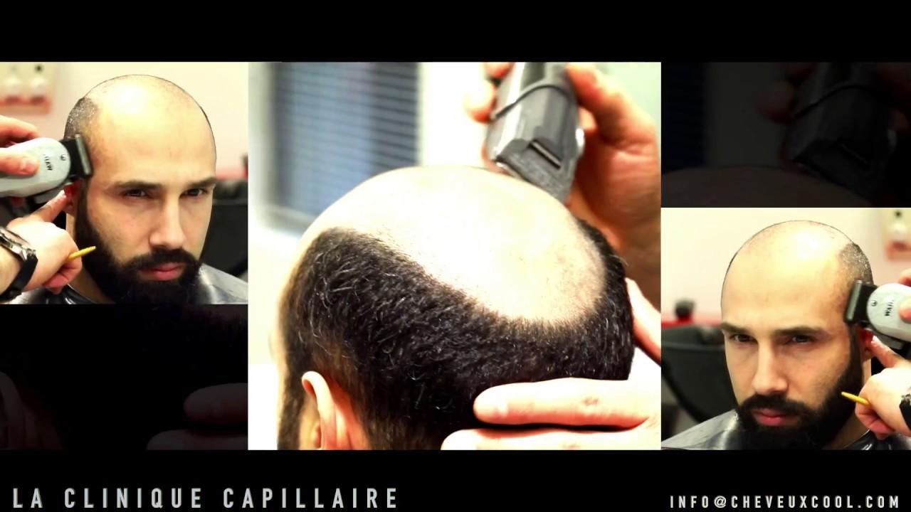 La Greffe de Cheveux Non Chirurgicale - La