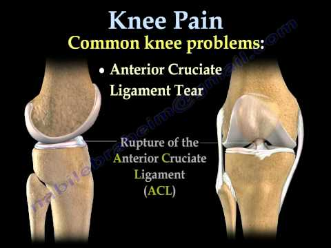 Knee Pain , common causes- Everything You Need To Know - Dr. Nabil Ebraheim