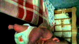 Мышечная кривошея, гипертонус мышц у грудного ребенка до и после детского массажа(Выполнено 2 курса массажа по 10 процедур. Медицинский центр