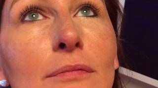 Rhinoplasty Incision 2X HD Close-Up View at 1 Year in Dallas, Texas