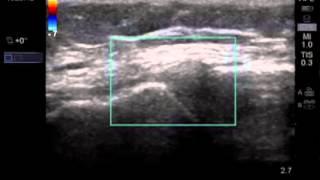 Comment: Réaliser un examen échographique du ménisque médial et du ligament collatéral médial