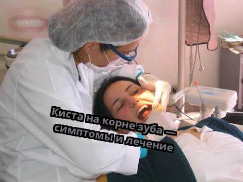 Киста на корне зуба — симптомы и лечение