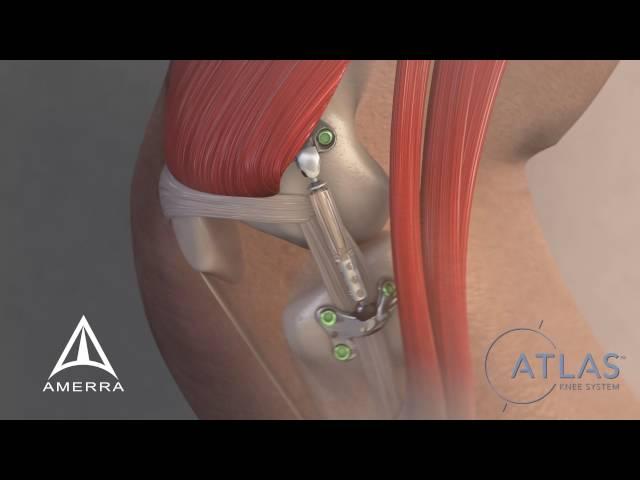 Moximed - Atlas Knee System - 3D Medical Animation