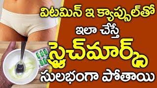 స్ట్రెచ్ మార్క్స్ పోవాలంటే I How to Rid from Stretch Marks in Telugu I Health I Everything in Telugu