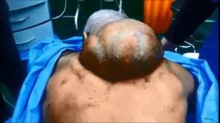 regional technique for big back lipoma removal
