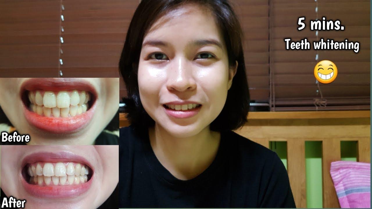 Uk Teeth Whitening Gel My Los Feliz Beauty Blog