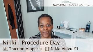 Female Hair Loss | Traction Alopecia Hair Loss Cure | Procedure (Nikki)