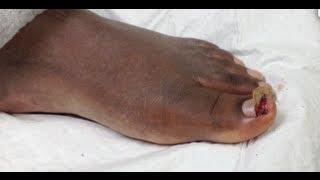 partial toe nail avulsion
