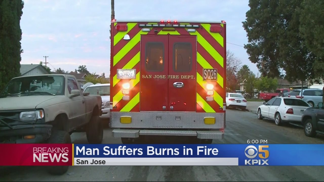 man-badly-burned-escaping-san-jose-house-fire