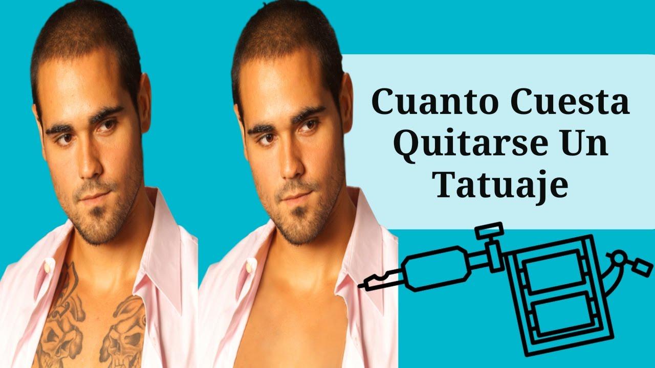 Cuanto Cuesta Quitarse Un Tatuaje Cuanto Vale Quitarse Un Tatuaje