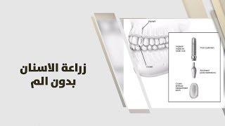 د. خالد عبيدات - زراعة الاسنان بدون الم