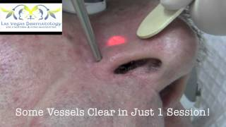 Laser Vein Destruction at Las Vegas Dermatology Thumbnail