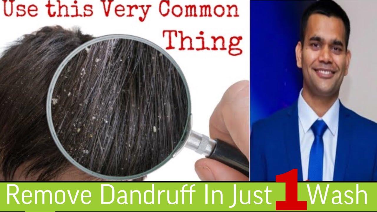 Get rid of dandruff in one wash