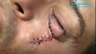 CBC de parpado /BCC on eyelid
