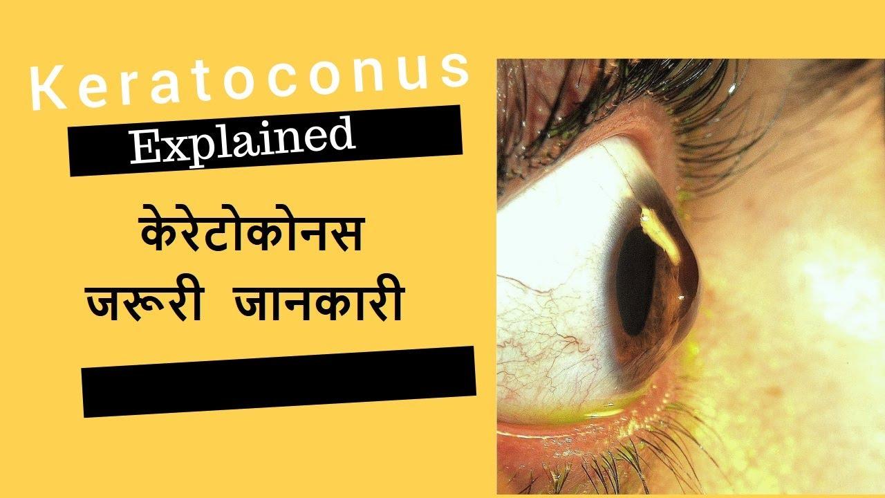 műtét utáni műtét a látás helyreállítására