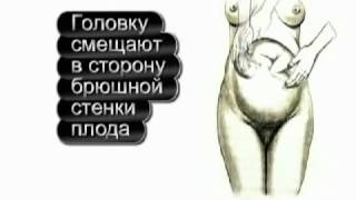 Наружный акушерский поворот(Обман диабетиков в интернете http://sdiabetom.ru/zhizn-s-diabetom/alivemax-otricatel-nye-otzyvy.html., 2015-12-04T13:09:01.000Z)
