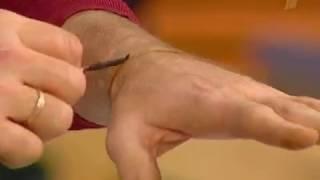 """Золотой запас """"Малахов+"""". Как лечить гипертонию. Индийский метод рисования йодом."""