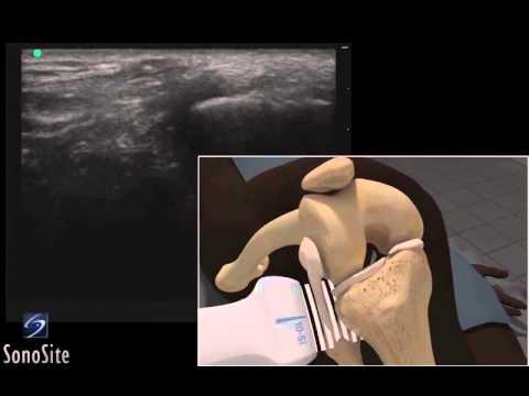 Guide 3D: Esame ecografico del legamento collaterale laterale - Sistema a ultrasuoni SonoSite