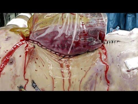 Bogota bag (laparotomy damage control surgery), time lapse digital painting
