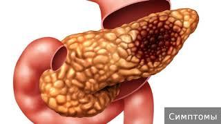 Острый панкреатит. Как лечить острый панкреатит.