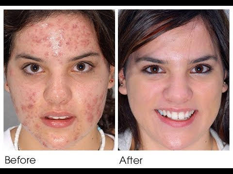 Acne Scar Removal | Laser Treatment | Phototherapy