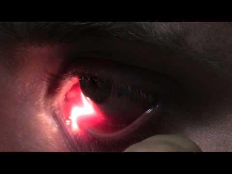 Ophthalmic Skills Video - Basics in Slit Lamp Examination