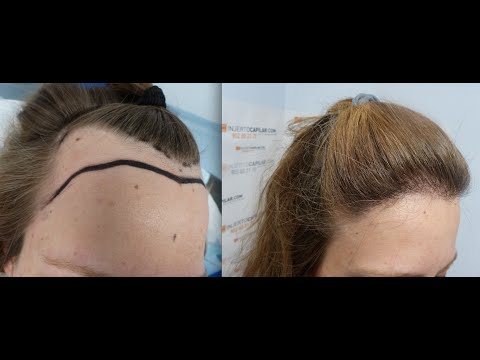 1551 FU's. Hair Transplant by FUE Technique. Female ...